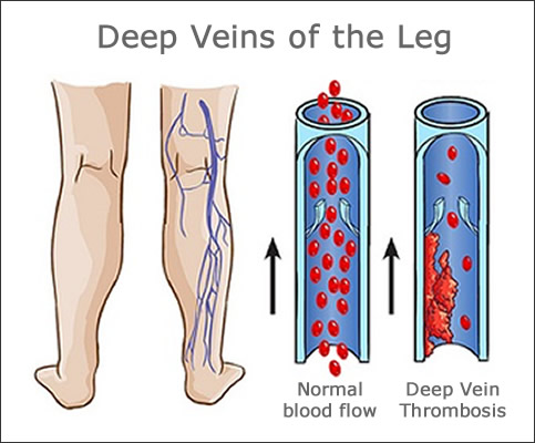 Treating Deep Vein Thrombosis with Compression Foot and Calf Sleeves