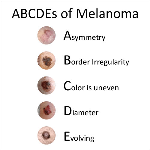 ABCDEs of Melanoma